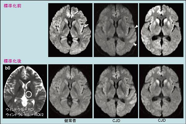 プリオン病のMRI画像診断の注意...
